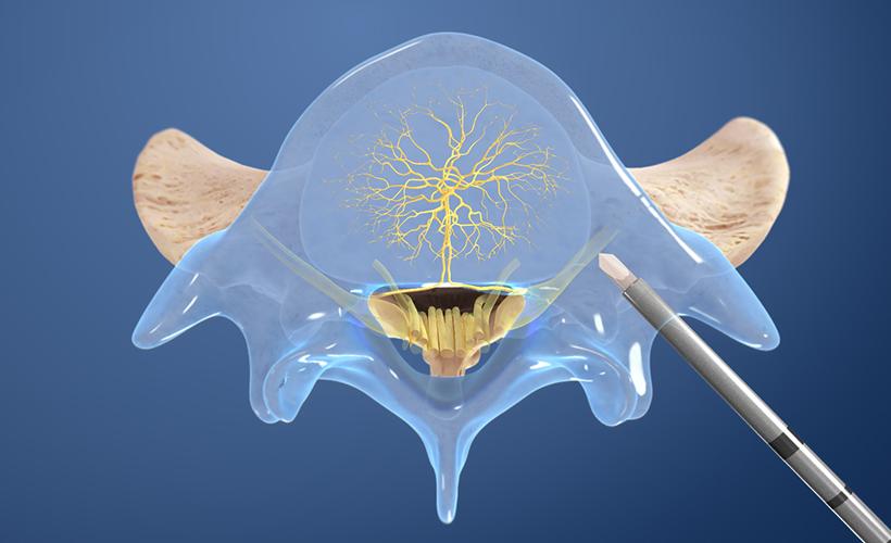 Basivertebral Nerve Ablation