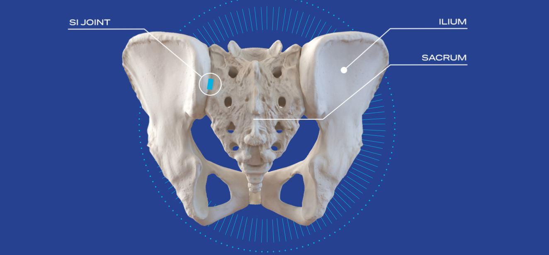 Minimally-Invasive Sacroiliac (SI) Joint Fusion