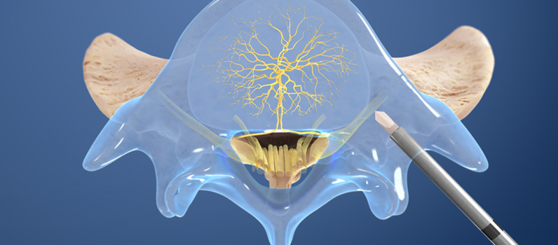 basal-vertebral-nerve-ablation
