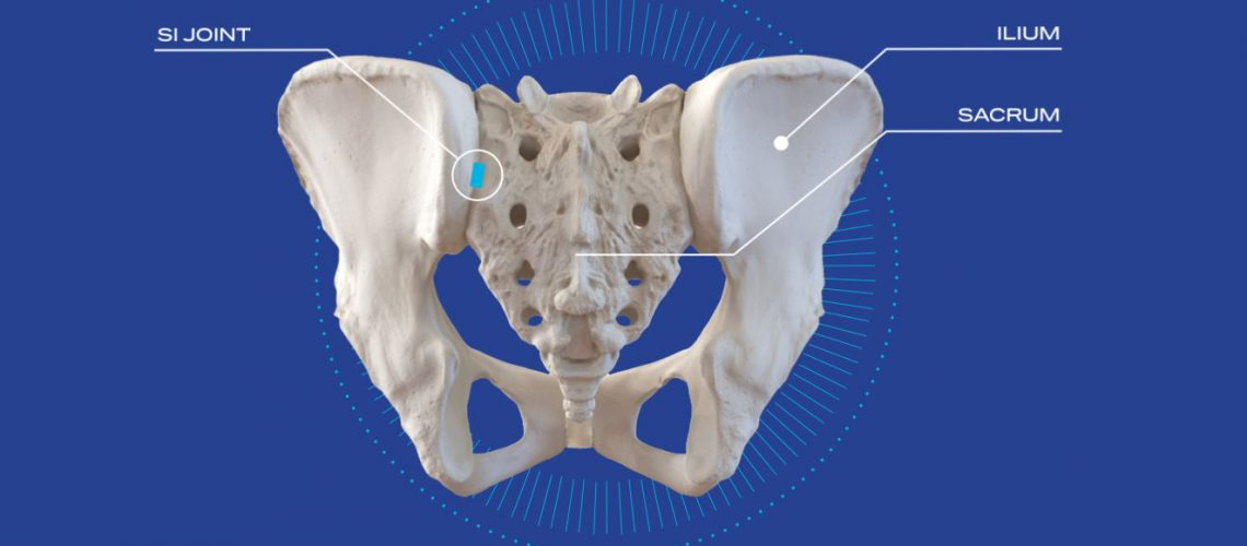 minimally-invasive-sacroiliac-joint-stabilization